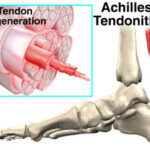 foot_achilles_tendon